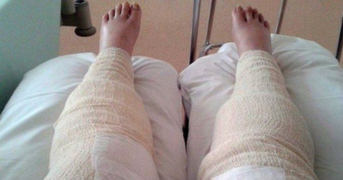Casi pierde las piernas por depilarse