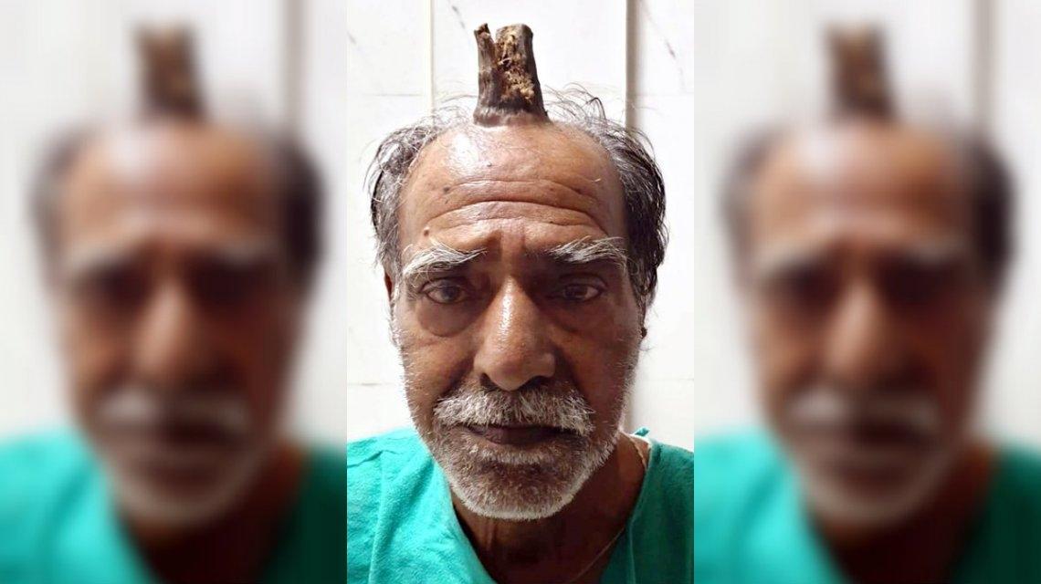 Se golpeó la cabeza y le salió un cuerno de 10 centímetros