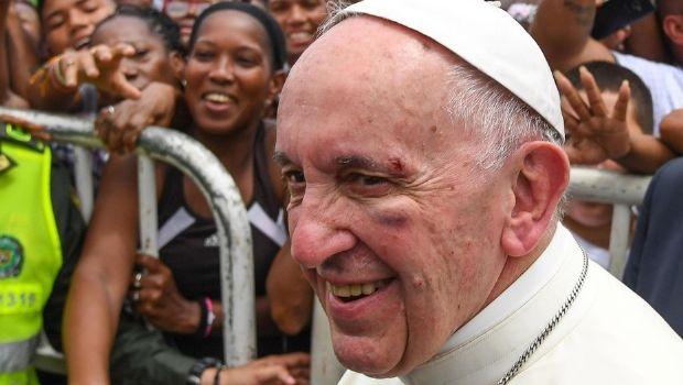 VIDEO: El Papa Francisco y sus heridas en el rostro
